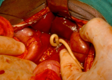 Adult_ascaris_worms_being_removed_from_the_bile_duct_of_a_patient_in_South_Africa
